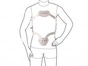 Ортез рамочный гиперэкстензионный Ottobock 28R15